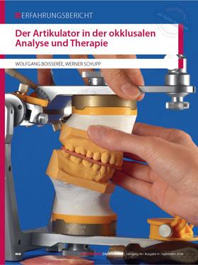Der Artikulator in der okklusalen Analyse und Therapie